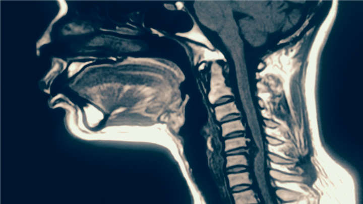Watch These Amazing MRI Videos Of Beatboxers In Action